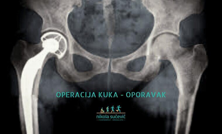operacija kuka – oporavak