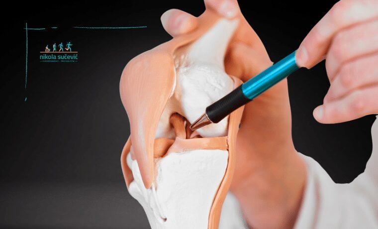 operacija prednjeg ukrstenog ligamenta