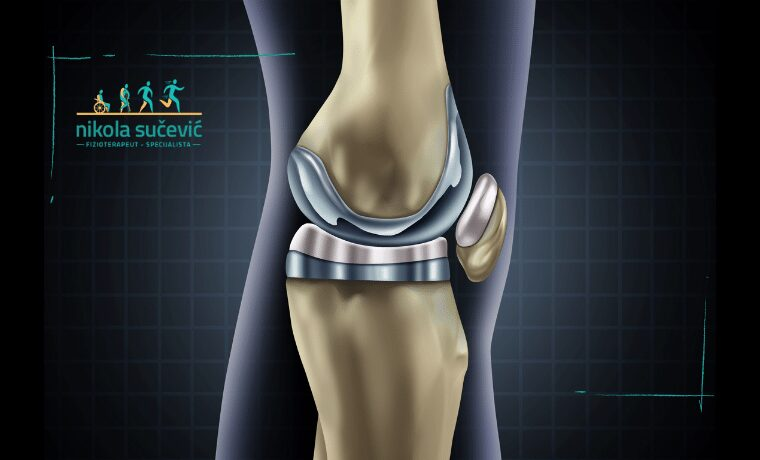 endoproteza kolena sucevic