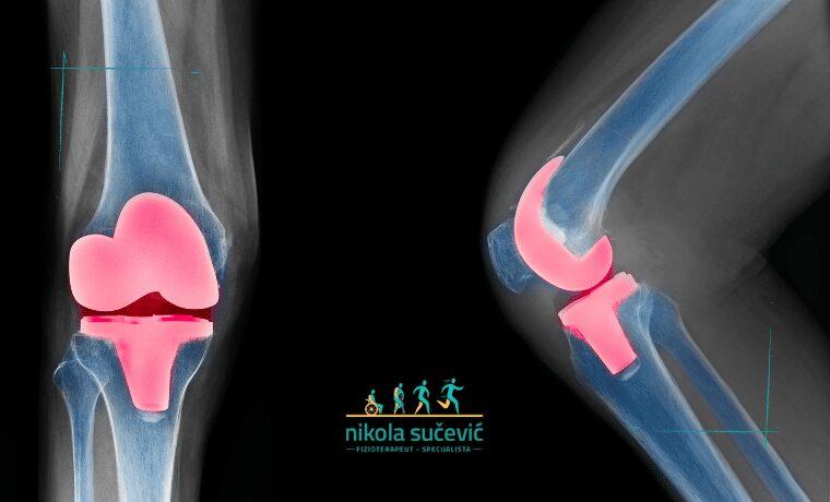 artroplastika operacija kolena